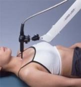 星状神経節近傍照射療法